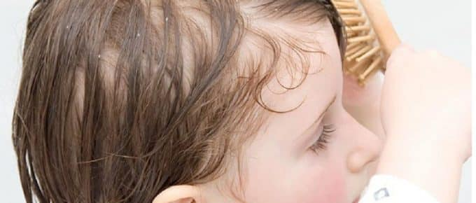 Best Dandruff Shampoos for Kids